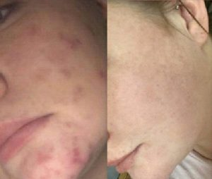 bethans_skin_before_after